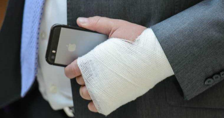 У пермяка срослись пальцы на руке после взрыва на заводе